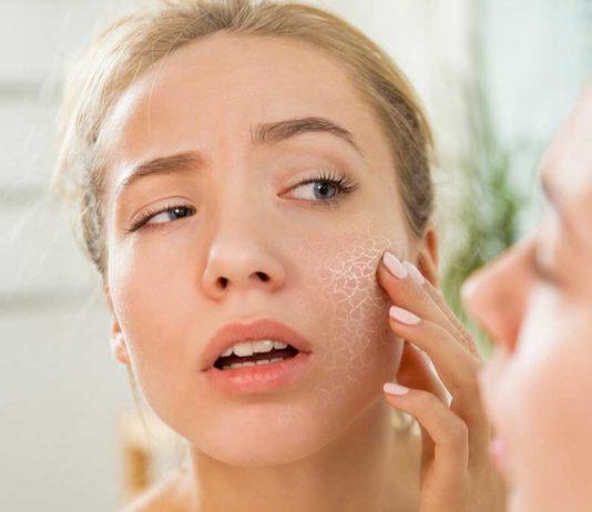 Prevent-Dry-Skin